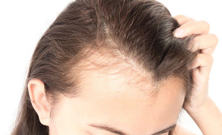 Hair loss center Boston : Tips for better results